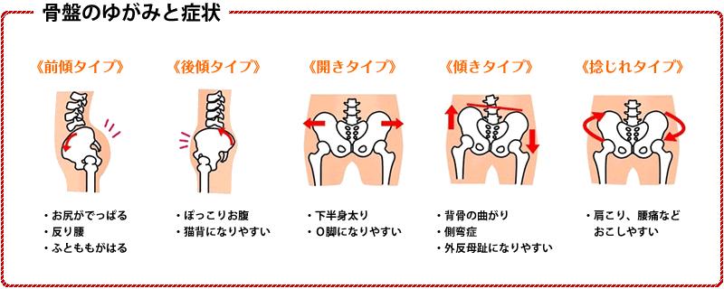 骨盤のゆがみと症状